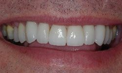 After photo of porcelain veneers remaking a smile