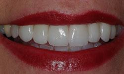 After photo of Invisalign patient with now straightened teeth