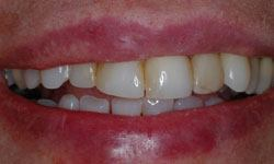 Before photo of uneven teeth