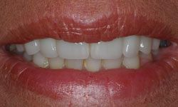 After photo of astonishing makeover using Invisalign and porcelain veneers