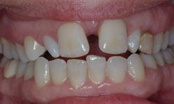 Before photo of teeth with sever gaps and small lateral incisors