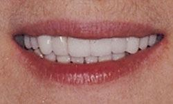 After photo of mouth improved with porcelain veneers and porcelain crowns