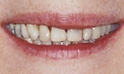 Before photo of mouth with gum disease and tooth discoloration
