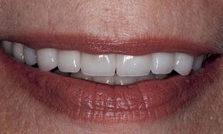 After photo of a newly repaired smile using porcelain crowns