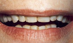Before photo of chipped and worn-down teeth
