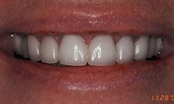 After photo of beautiful smile featuring porcelain veneers and Invisalign work