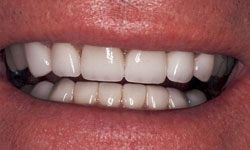 After photo of smile rebuilt with porcelain veneers and porcelain crowns