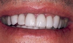 After photo of newly bright and white teeth/> 		<span>Before</span> 		<span>After</span> 		<span class=