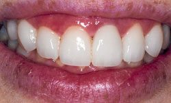 After photo of patient confident with new smile after placing porcelain veneers