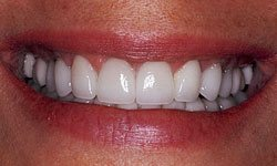 After photo of mouth with porcelain veneers and recontoured gums