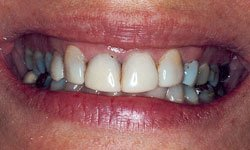 Before photo of mouth with gummy smile and lateral incisors