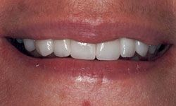 After photo of remade smile using porcelain veneers