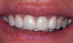 After photo of conservative use of porcelain veneers