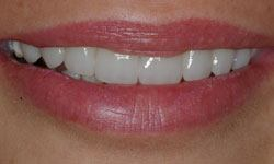 After photo of a repaired smile featuring porcelain veneers
