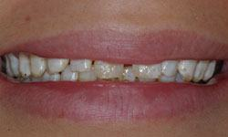 Before photo of a smile with spaced teeth and irregular enamel