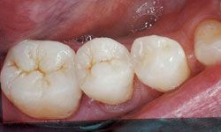 After photo of teeth with porcelain onlays