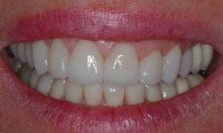 After photo of a bright and improved smile with porcelain veneers