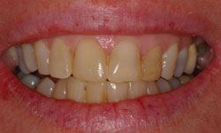 Before photo of severely discolored teeth