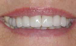 After photo of mouth with newly aligned teeth thanks to Invisalign and porcelain veneers