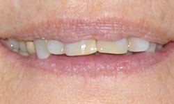 Before photo of patient's mouth with overbite and crooked teeth