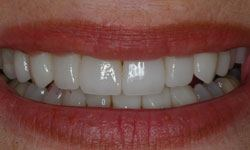 After photo of transformed smile using porcelain veneers