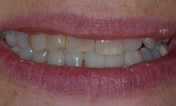 Before photo of poorly shaped and discolored teeth