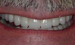 After photo of restored smile using porcelain crowns and porcelain veneers