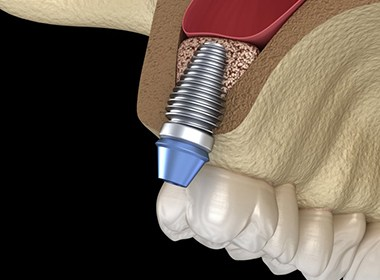 diagram of dental implant in Lehigh Valley on top arch