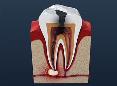 computer illustration of tooth
