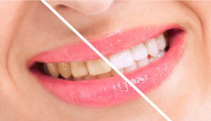 Your dentist in Allentown offers professional teeth whitening treatments.