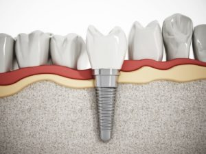 Your trusted dentist provides dental implants near Allentown.