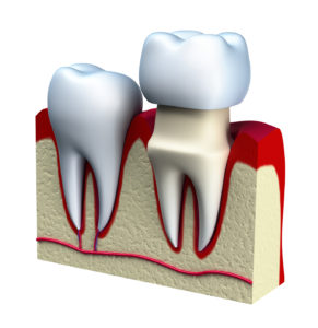 Representation of a dental crown