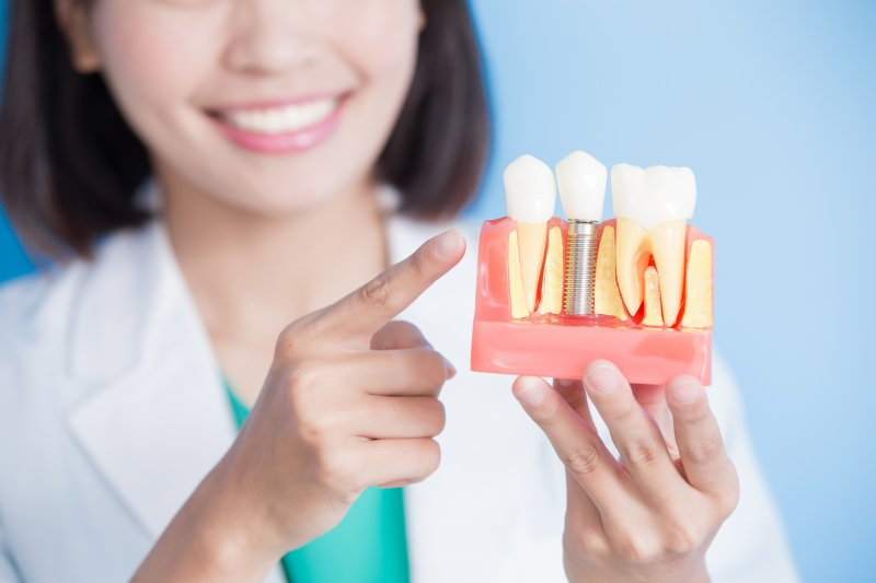 Model of dental implants in Lehigh Valley